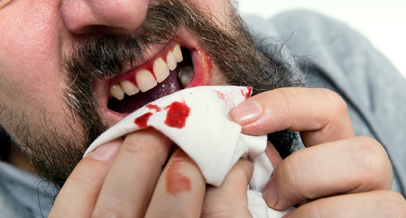 A man wipes blood from his gums.