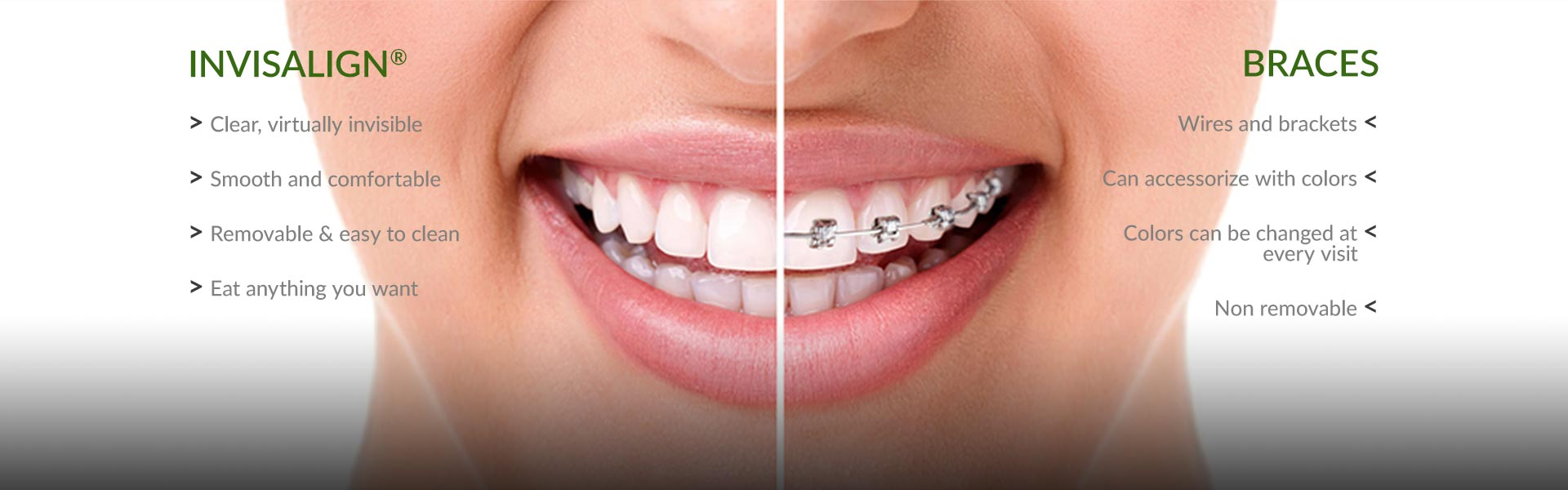 Kazmierski-Moorestown-Orthodontics-Moorestown-NJ-Sliders-Invisalign-vs-Braces