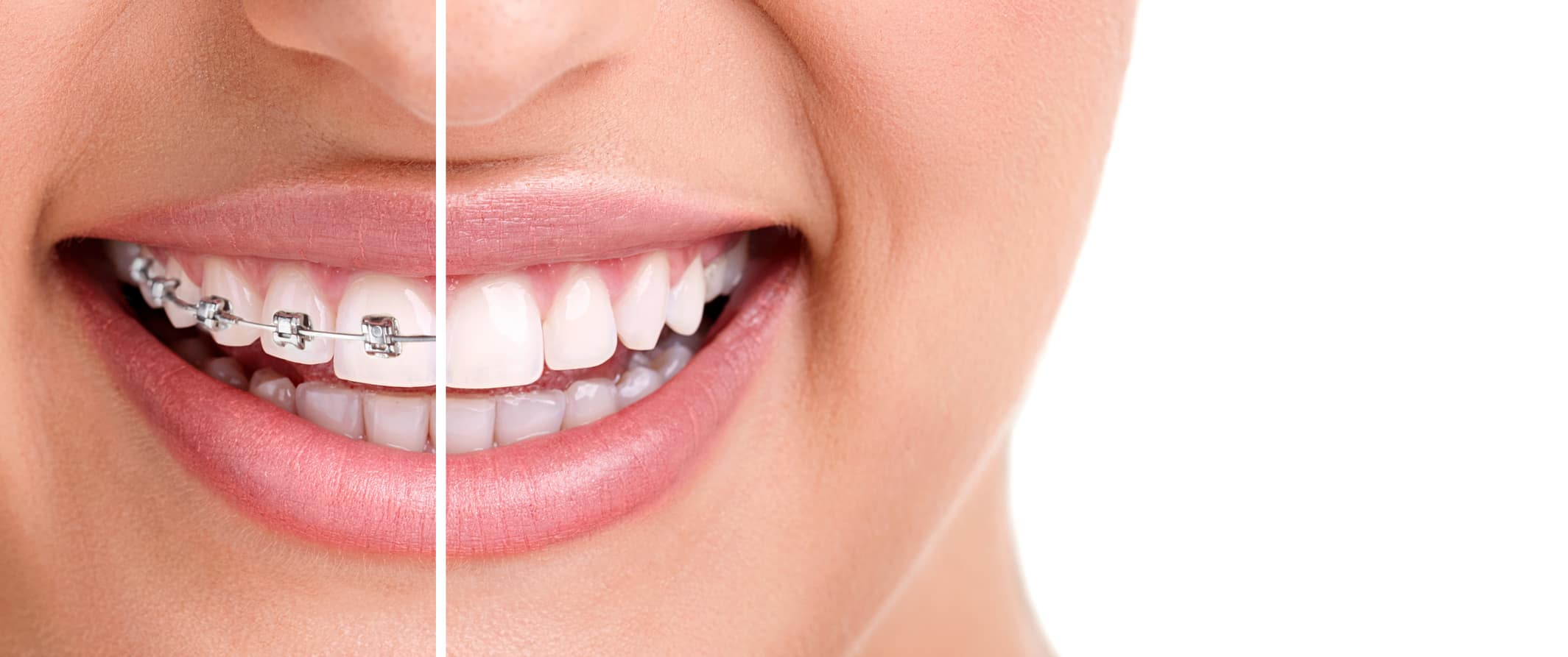 woman teeth and smile. Close up,half with braces